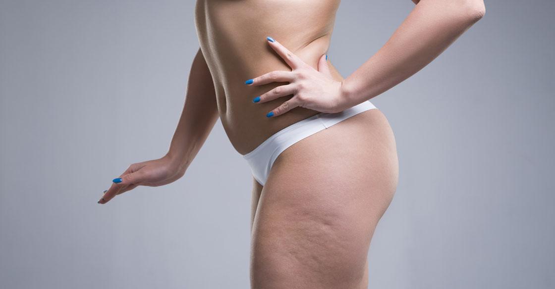 éliminer la cellulite par radiofréquence