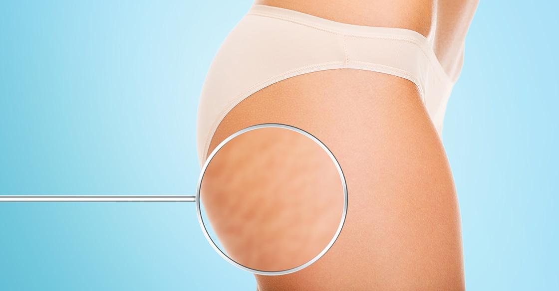 se débarrasser de la cellulite sans chirurgie